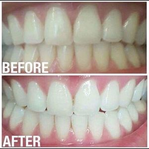 Other - Tooth whitening paste